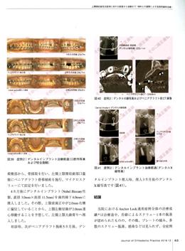 JOP/矯正臨床ジャーナル 2016年12月号