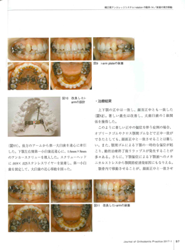 JOP/矯正臨床ジャーナル 2017年1月号