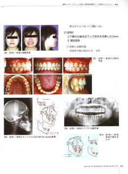 JOP/矯正臨床ジャーナル 2017年6月号