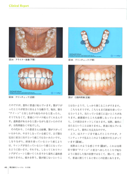 JOP/矯正臨床ジャーナル 2017年11月号