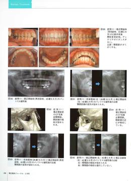 JOP/矯正臨床ジャーナル 2018年2月号