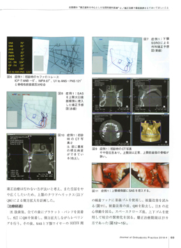 JOP/矯正臨床ジャーナル 2018年4月号