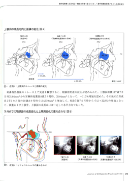 JOP/矯正臨床ジャーナル 2018年8月号