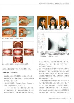 JOP/矯正臨床ジャーナル 2018年9月号
