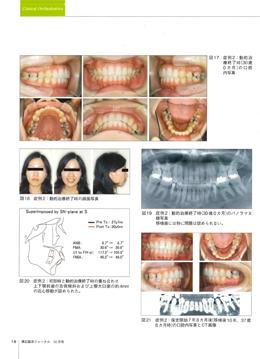 JOP/矯正臨床ジャーナル 2018年10月号