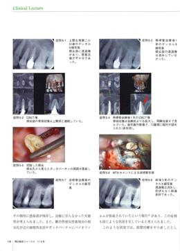 JOP/矯正臨床ジャーナル 2018年11月号