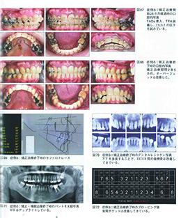 JOP/矯正臨床ジャーナル 2019年7月号