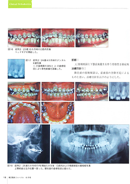 JOP/矯正臨床ジャーナル 2020年10月号