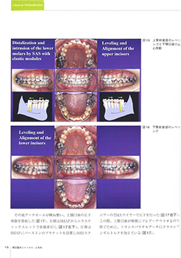 JOP/矯正臨床ジャーナル 2021年3月号